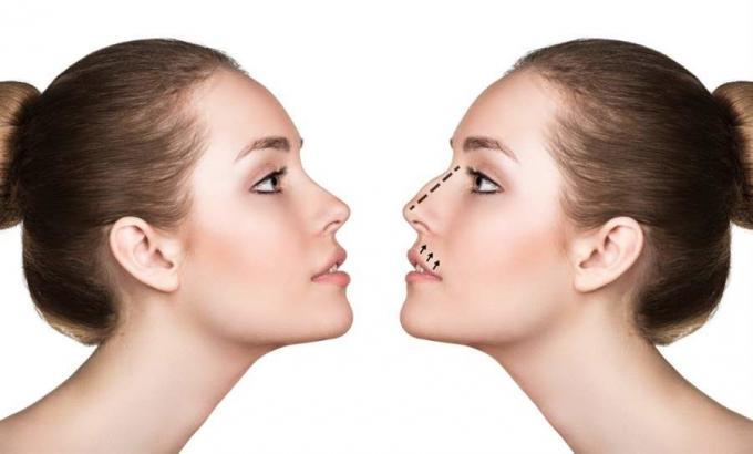 Rhinoplasty In Dubai -Nose surgery Dubai- Best rhinoplasty Dubai