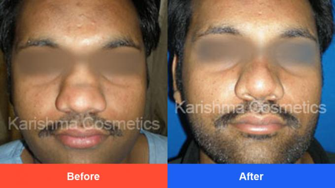 Nose Surgery In Pune | Rhinoplasty Cost In Pune