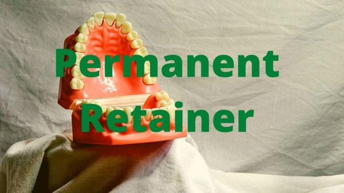 Permanent Retainer Meaning, Cost, Broke, Removal, Problems