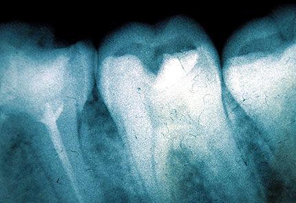 Best Dental Implant Surgeon Bellevue - Dental Implants Bellevue, WA