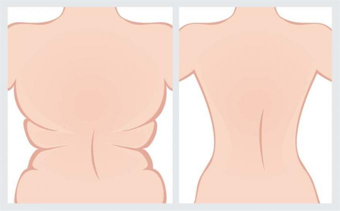 Body Cosmetic Surgery Procedures In Dubai | Hasan Surgery