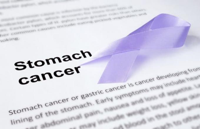Diagnosis and Treatment of Gastric Cancer - Sydney Gut Clinic