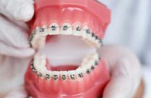 How Does An Orthodontist Help In Getting Straight Teeth?