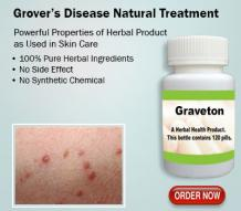 Natural Remedies for Grovers Disease with Herbal Supplement