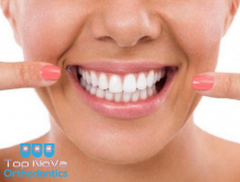 Different Methods of Teeth Whitening You Should Know