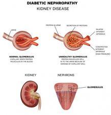 Ayurvedic treatment for diabetic nephropathy