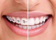 (LLLT)Low-level laser therapy in acclerating orthodontic tooth