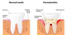7 Benefits of Using Laser Therapy for Periodontal Disease