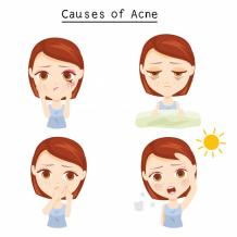 The Homo Sapien Thinks — Acne: Benefits, Treatment, and Cost