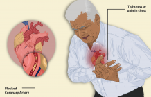 Types of Heart Disease and It's Treatment Cost In India - High Forum