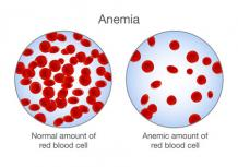 Ayurvedic treatment for Anemia | Kidney And Ayurveda