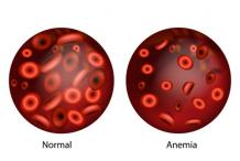 What is The Best Treatment For Anemia?