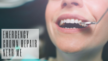 Best Guide on Cracked Teeth Treatment