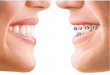 Best Orthodontist, Dental Braces Treatment in Delhi, Braces Orthodontic Services in South Delhi, Greater Kailash