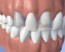 Replacing missing tooth - Dental Bridges / Dental Dentures Treatment