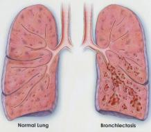 Bronchiectasis Relief can be found in Natural Treatment - Herbs Solutions By Nature