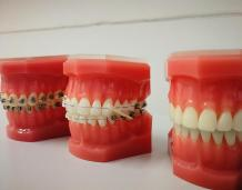 How Teeth Alignment Can Be Done With the Help of Invisalign?