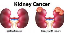 kidney cancer treatment in Ayurveda