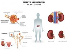 The Diabetic Kidney Disease Ayurvedic Treatment is effective