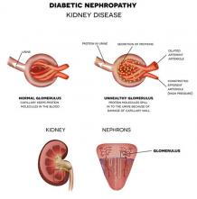 Can We Treat Diabetic Nephropathy Naturally?