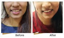 Visit Dr. Ashish Ghuge Clinic for Dimple creation Mumbai