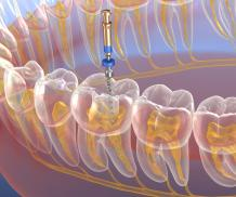 Endodontic Treatment | Successful | How Is It Performed?