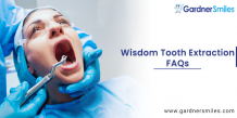Wisdom Tooth Extraction FAQs