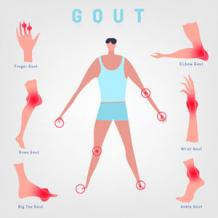 Ayurvedic Treatment For Gout Problem | Kidney And Ayurveda