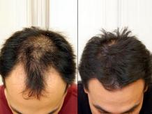 The Best Hair Transplant option available in Pakistan - Vigyaa