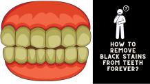How To Remove Black Stains From Teeth Forever? - drjoshipura