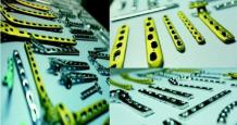 Huge Demand of Orthopedic Implant Exports in India