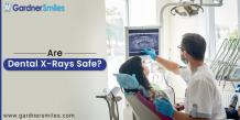 Are Dental X-Rays Safe? - gardnersmiles