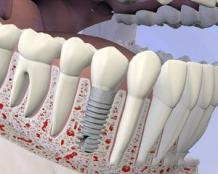 Replacing Missing Tooth Seattle - Dental Bridges / Dentures Treatment | PSOMS