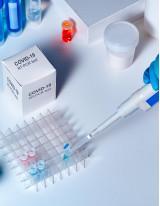 Coronavirus Test Kits Market | Size, Share, Growth, Trends | Industry Analysis | Forecast 2025 | Technavio