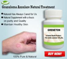 Herbal Supplements for Granuloma Annulare Treat with Natural Ingredients