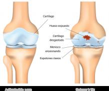 Osteoartritis: Una enfermedad degenerativa de las articulaciones