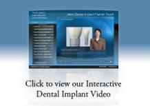 Dental Implants Treatment - Dental Implant Surgeon Mukilteo | HarbourPointe
