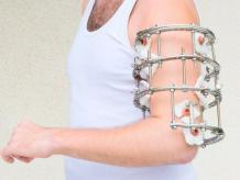 Let Us Know About Complications in External Fixation