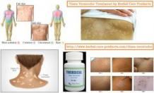 Natural Remedies for Tinea Versicolor | Natural Treatment for Tinea Versicolor - Herbal Care Products