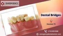 Dental Bridges Houston TX - ImgPile