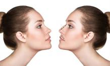 Rhinoplasty In Dubai - Nose Job With Highly Trusted Surgeon In Dubai