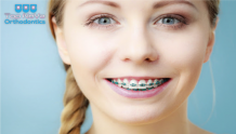 Types of Braces Orthodontic Treatment Offers