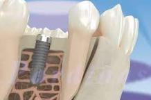The Global Osseointegration Implants Market Continues To Grow Owing To the Increase of Joint Replacement Surgeries in the Geriatric Population Worldwide