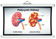 How To Treat Polycystic Kidney Disease?