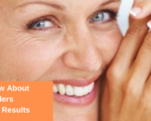 Reducing Smile Lines With Botox & Fillers
