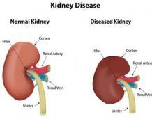 Can Ayurveda Cure Kidney Disease?