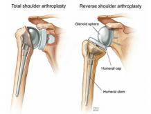 Shoulder Replacement in Chennai-Prime Shoulder