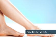 Varicose Veins Surgery Hyderabad - Varicose Veins Laser Treatment Telangana, AP