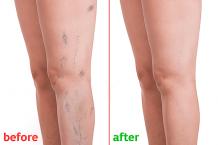 Varicose Veins Laser Treatment | Vascular Veins Specialist in Hyderabad