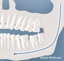 Impacted Wisdom Teeth - Impacted Teeth Removal Treatment Seattle | PSOMS